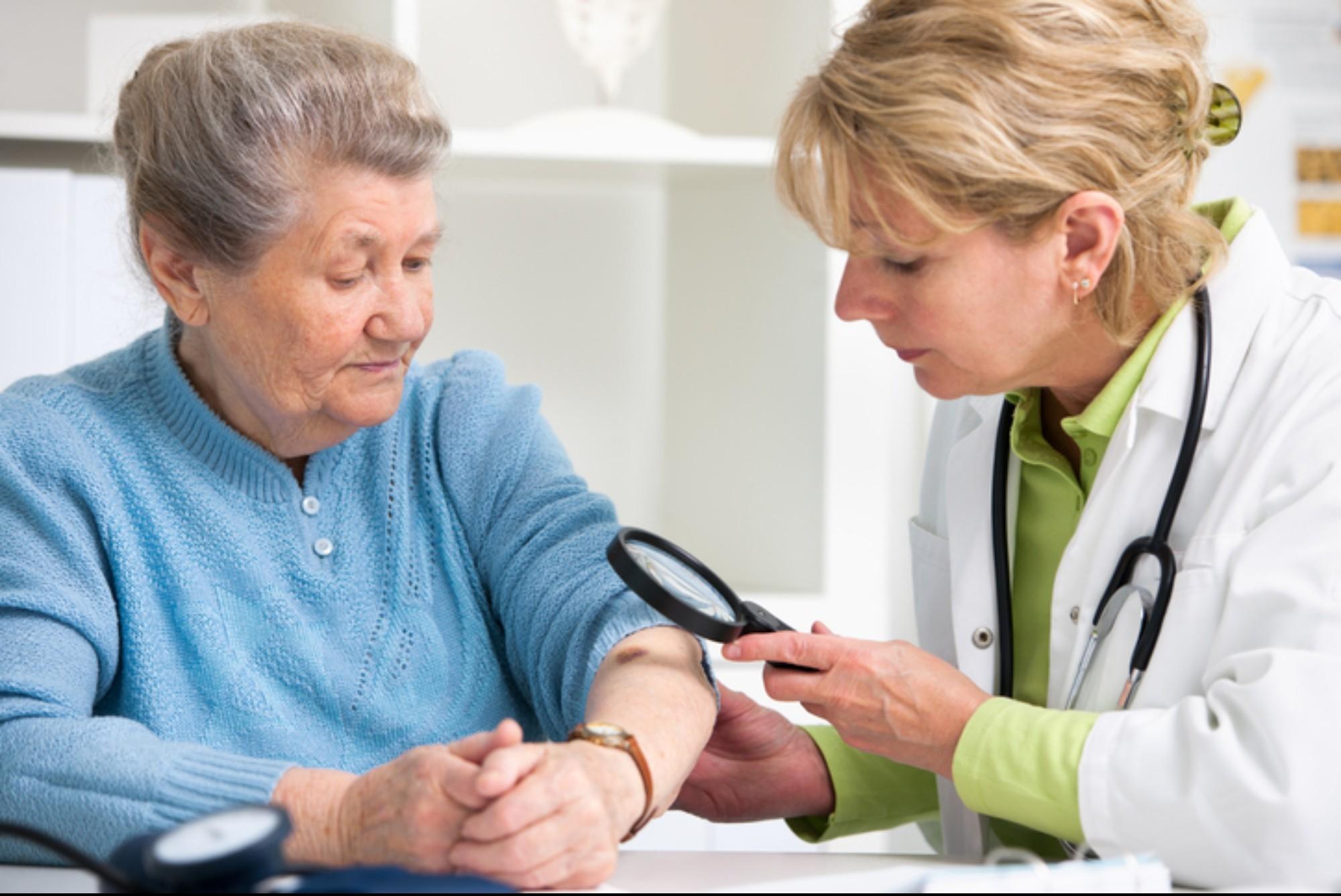 4 dicas para tratar o câncer de pele em idosos